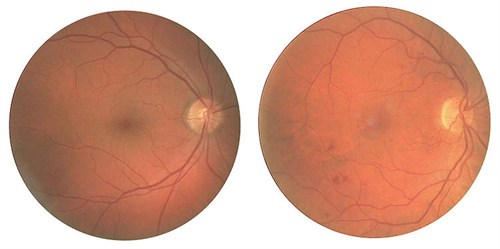 Fundus photograph
